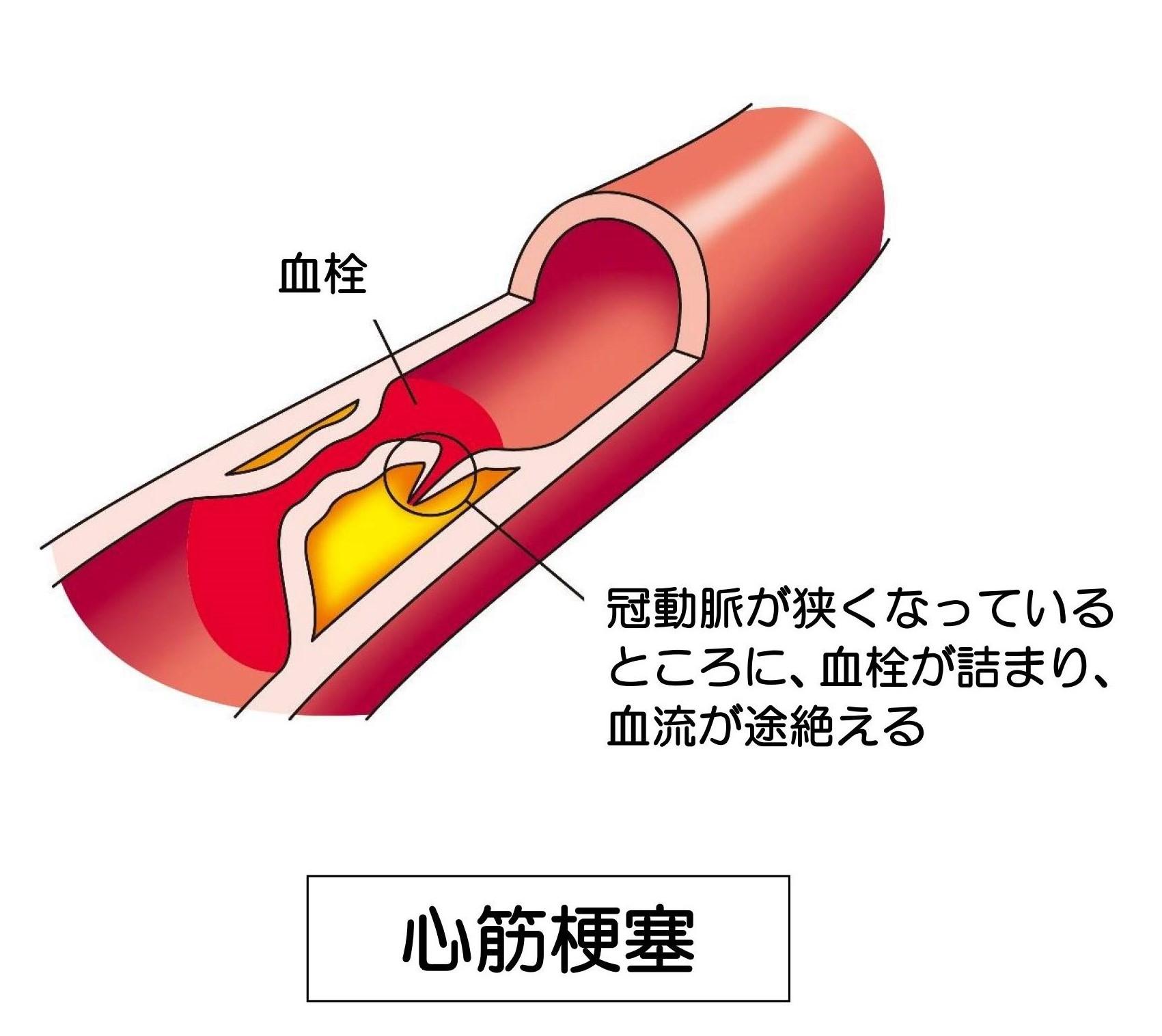皮 チン 子 イボ の